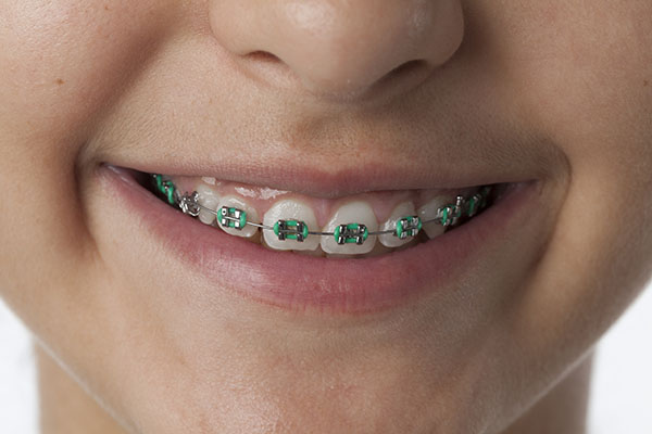 Unknown Facts About Affordable Braces